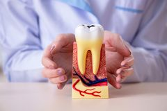 The dentist practicing work on tooth model Stock Photography