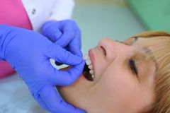 Dentist puts dental veneers patient. And correction of teeth Royalty Free Stock Photos