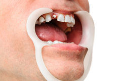 Dentist retraction system Royalty Free Stock Photos