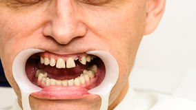 Dentist retraction system teeth hygiene copy space Stock Photo