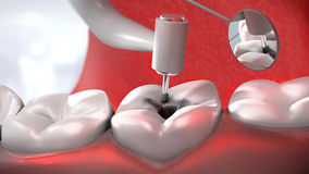 Dentist's drill treating a sick tooth Stock Images