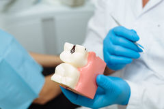 Dentist`s hads with model of teeth. Dentist`s  hads in blue gloves with model of teeth Stock Photography