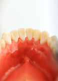 Dentists teeth checkup, series of related photos Stock Image