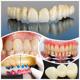 Dentist's work. A collage made of photos of modern dental products and solutions vastly used on social media Stock Photos