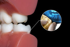 Dentist show diagnosis wisdom tooth. Diagnosis abscess toothache dentist infographic royalty free stock photography