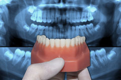 Dentist show lower dental arch over x-ray teeth Stock Photos