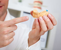 Dentist showing dental cast Royalty Free Stock Image