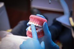 Dentist showing to patient dental molds of teeth Stock Photography