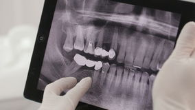 Dentist Shows A Patient X-Ray On The Tablet stock video footage