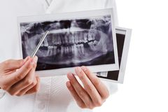 Dentist shows a picture of the jaw Stock Photography
