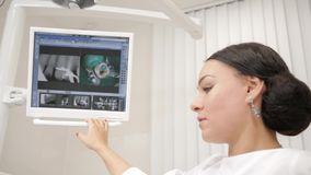 The dentist shows a picture of the x-ray on the monitor to the patient Young African American male patient at chair at. Young beautiful girl doctor dentist stock video