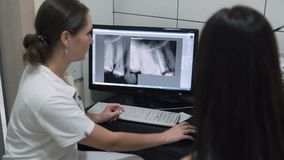 Dentist shows to patient an x-ray picture of the jaw on screen, slow motion stock video