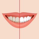 Dentist Symbol Royalty Free Stock Image