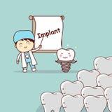 Dentist teach teeth implant. Cartoon doctor or dentist teach teeth implant, great for dental care concept Royalty Free Stock Photo