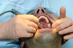 Dentist toll in patient mouth Stock Photo
