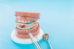 Dentist tools and orthodontic model. stock photo