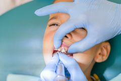 Dentist is treating a boy's teeth. Dentist examining boy's teeth in clinic. A small patient in the dental chair smiles. Dantist royalty free stock photos