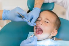 Dentist is treating a boy's teeth. Dentist examining boy's teeth in clinic. A small patient in the dental chair smiles. Dantist stock images