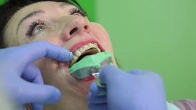 Dentist treating a patient`s teeth with dental tools in dental clinic. Dentistry. stock video footage