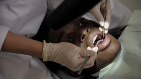 The dentist treats the patient through a microscope. Young African American male patient at chair at dental clinic. Young beautiful girl doctor dentist. Young stock footage