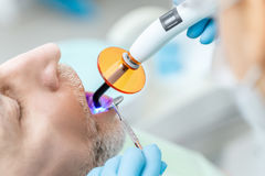 Dentist using dental curing UV lamp on teeth of patient. Close-up partial view of dentist using dental curing UV lamp on teeth of patient Stock Photography