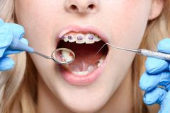 Dentist using mirror and periodontal probe. Cropped shot of dentist in latex gloves using a mouth mirror and periodontal probe on woman with braces Royalty Free Stock Images