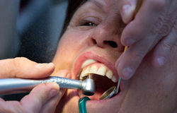 Dentist working on teeth Stock Images