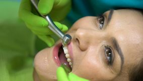 Dentista che lucida incisivo centrale, preparante dente per il primo piano di disposizione del sigillante archivi video