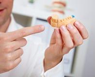 Dentista che mostra getto dentale immagine stock libera da diritti