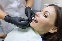 Dentista de la hembra adulta que elige el implante del diente Concepto de la medicina, de la odontología y de la atención sanitar foto de archivo