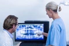 Dentista ed assistente dentario che discutono i raggi x sul monitor Immagine Stock Libera da Diritti