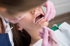 Dentista fêmea que verifica acima dos dentes pacientes com os suportes do metal no escritório dental da clínica Medicina, odontol foto de stock