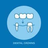 Dentista, linea icona di ortodonzia Corona dentaria, segno di trattamento del dente, elementi medici Simbolo lineare sottile di s Fotografia Stock Libera da Diritti