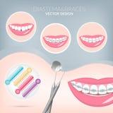 Dentista, orthodontist apoyos sanos y dentales de Teeth fotografía de archivo libre de regalías