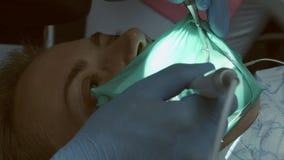 Dentista professionista durante il sigillamento del dente con la carie archivi video