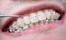 Dentista que comprueba encima de los dientes con los soportes de cerámica usando punta de prueba en la oficina dental Tiro macro  fotografía de archivo libre de regalías