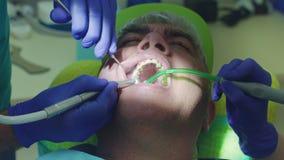 Dentista que cura o paciente masculino no stomatology Fim acima do trabalho das mãos do dentista filme