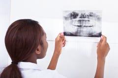 Dentista que mira la radiografía del mandíbula imagen de archivo