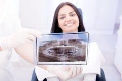 Dentista que muestra la radiografía imagen de archivo