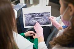 Dentista que muestra los detalles de la imagen de la radiografía al paciente femenino en oficina dental y que se prepara para el  fotos de archivo libres de regalías