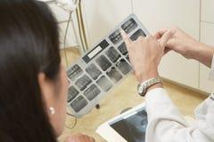 Dentista que señala hacia una cavidad en informe de la radiografía foto de archivo