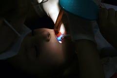 Dentista que toma cuidado usando los rayos ultravioletas Foto de archivo libre de regalías