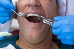 Dentista que usa los alicates quirúrgicos para quitar un diente de decaimiento foto de archivo