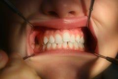 Dentiste dans l'inspection de plan rapproché photos stock