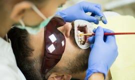 Dentiste examinant les dents patientes du ` s dans la clinique Homme barbu ayant des dents examinées aux dentistes Jeune homme de images libres de droits