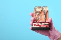 Dentiste tenant le modèle éducatif de la section de mâchoire avec des dents sur le fond de couleur photo stock