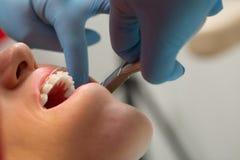 Dentiste vérifiant la parenthèse aux accolades sur le patient féminin Plan rapproché Gens réels image stock