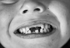 dentistry Enfant avec les dents absentes photo libre de droits