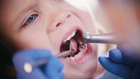 dentistry  Fin vers le haut clips vidéos