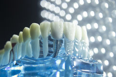 Dentists dental teeth implant. Dentists dental teeth teaching model showing each tooth, gum, root, implant, decay, plaque and enamel Stock Image